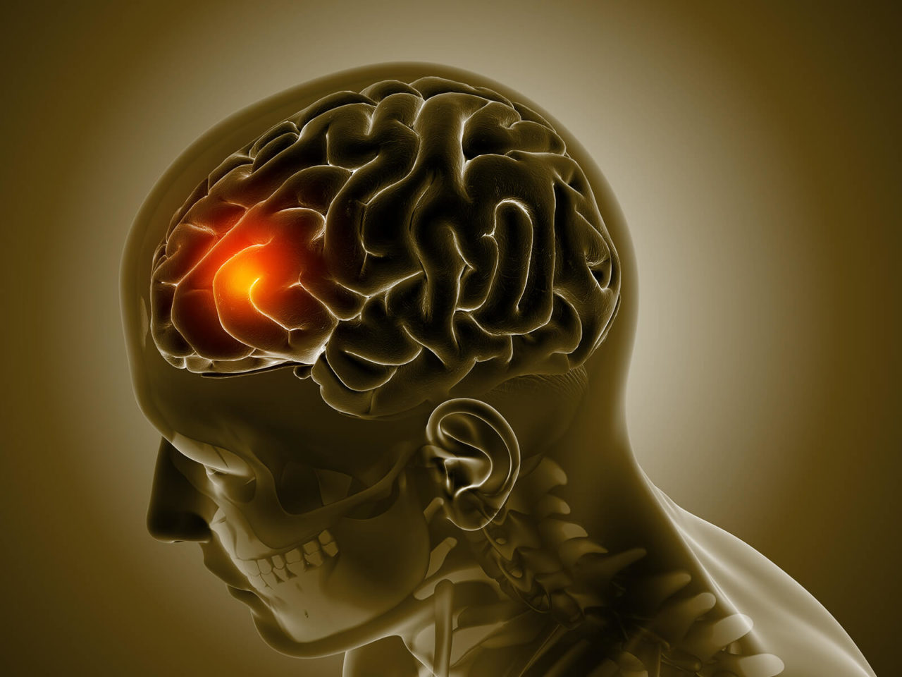 Early brain cancer detection breakthrough for Dxcover